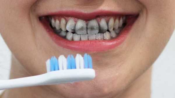 Charcoal teeth whitening advantages and disadvantages