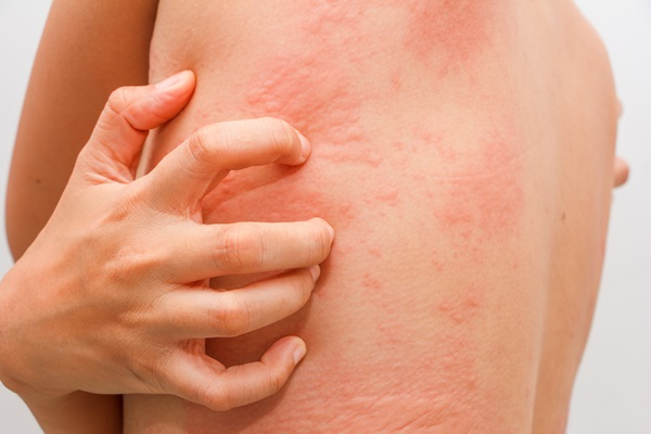 do not scratch skin rashes home remedies