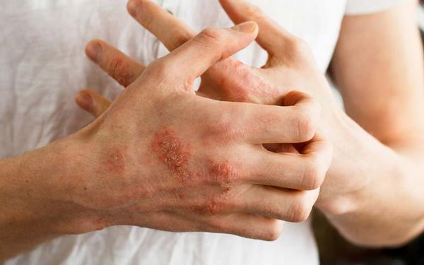 What to do in case of poison ivy rash